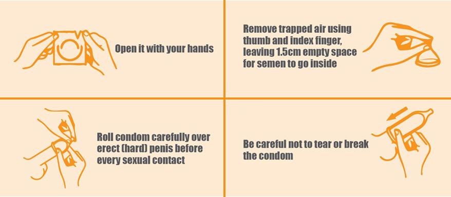Ruptured condom
